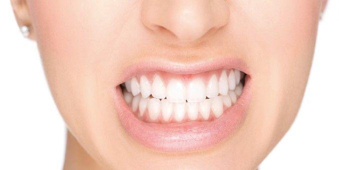 blanqueamiento dental palma de mallorca
